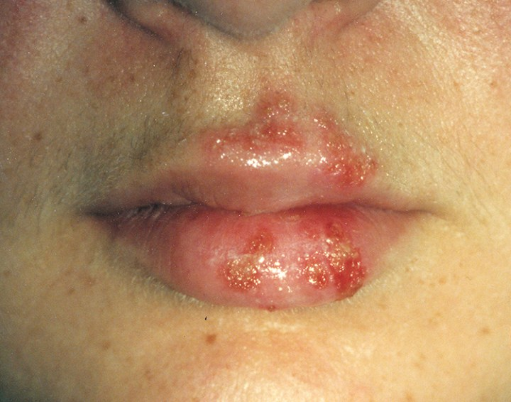 Causes Of Cold Sore, Herpes Simplex Virus? 3