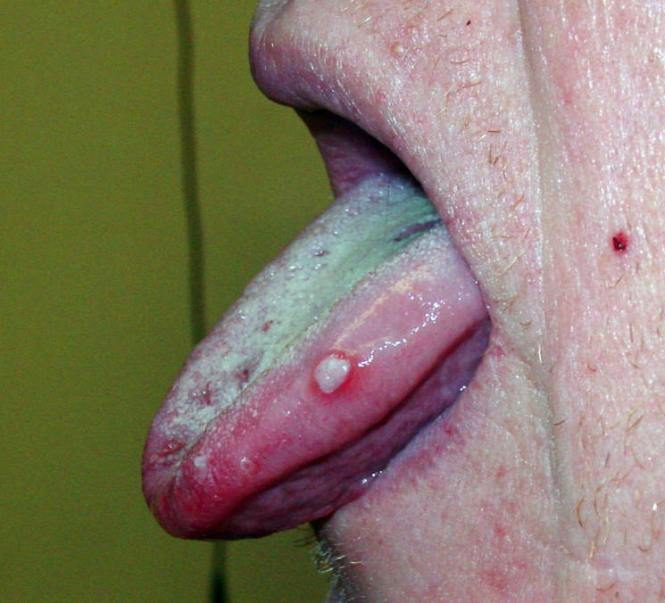 Herpes On Side Of Tongue 2