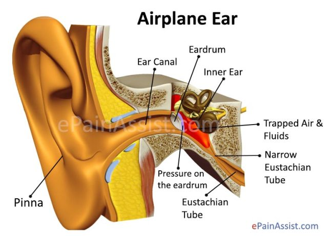 The tinnitus remained in that ear, but the other blocked ear recovered completely 2