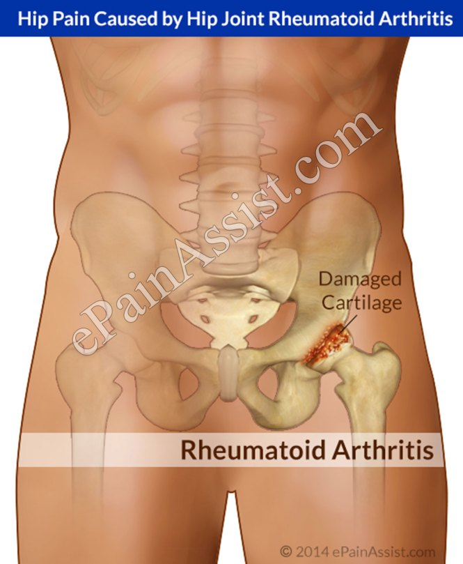 Achy Hips And Legs From Herpes 2