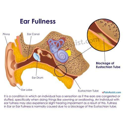 Medium Crop Of Ear Infection Hydrogen Peroxide