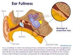Sightly Ear Home Remedies Ear Remedies Ear Piercing Infection Hydrogen Peroxide Ear Infection Hydrogen Peroxide Treatment