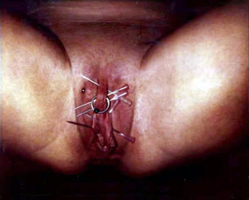 anal needle torture