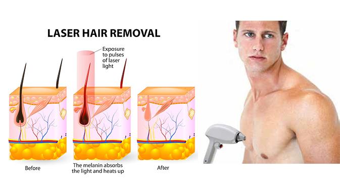 Laser-removal-banner