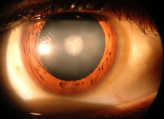 Magnified view of cataract in human eye, seen on examination with a slit lamp using diffuse illumination