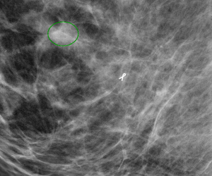 Mammography after Chemotherapy