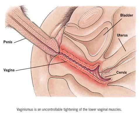 Can genital herpes break the hymen? 2