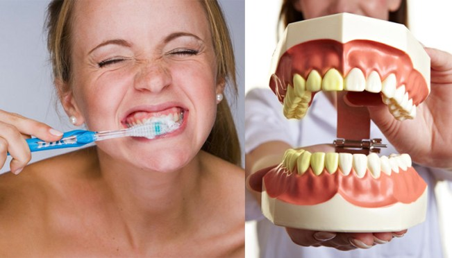 Too Much Or Fast Brushing Can Be Harmful To Your Teeth, Here's Why?