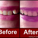 Whiten Your Teeth At Home With Dr Song