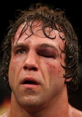 Kyle Kingsbury Suffered Multiple Eye And Nose Fractures Against Jimi Manuwa photo