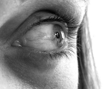 lasik eye surgery painful