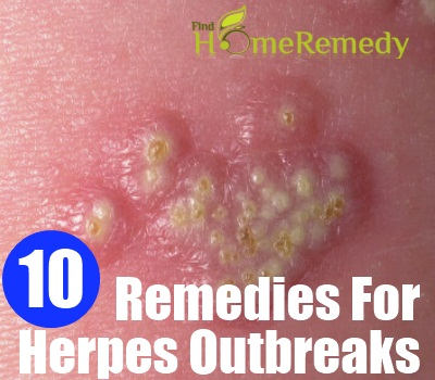 How Do I Get Pain Relief From A Bad Outbreak Of Herpes? 1