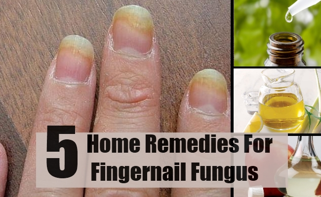 Watch 5 Common Nail Problems And How To Fix Them video