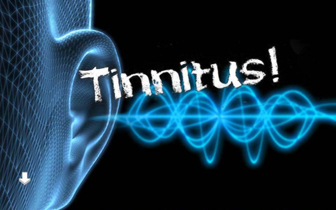 Pulsos electromagnéticos utilizados para tratar el tinnitus.
