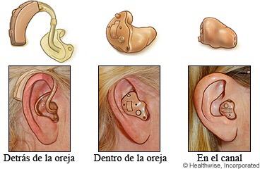 Dibujo_que_muestra_los_diferentes_tipos_de_audífonos