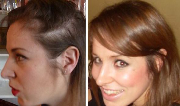 Best Way To Restore Lost Hair Naturally
