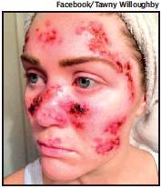 Tawny Willoughby's 2015 selfie documenting skin cancer treatment generated a 162% boost in searches of the terms 'skin' and 'cancer', a study has concluded