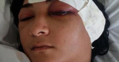 Luana de Cássia  -Sobrevivente fingiu estar morta- (Foto What Sapp)