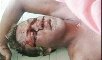 Emerson-dos-Santos-foi-assassinado-com-várias-pedradas-na-cabeça
