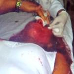 Formanda foi atingida por tinta na cabeça e não colou grau em Cuiabá (Foto: Reprodução/TVCA)