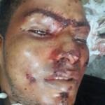 Buraco de Balas de arma de fogo perfuraram o rosto e o peito da vitima.(Foto-WhatsApp)