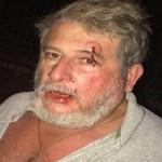 Empresário é agredido por PM após reclamar de som alto