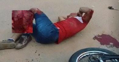 moto acidente perna
