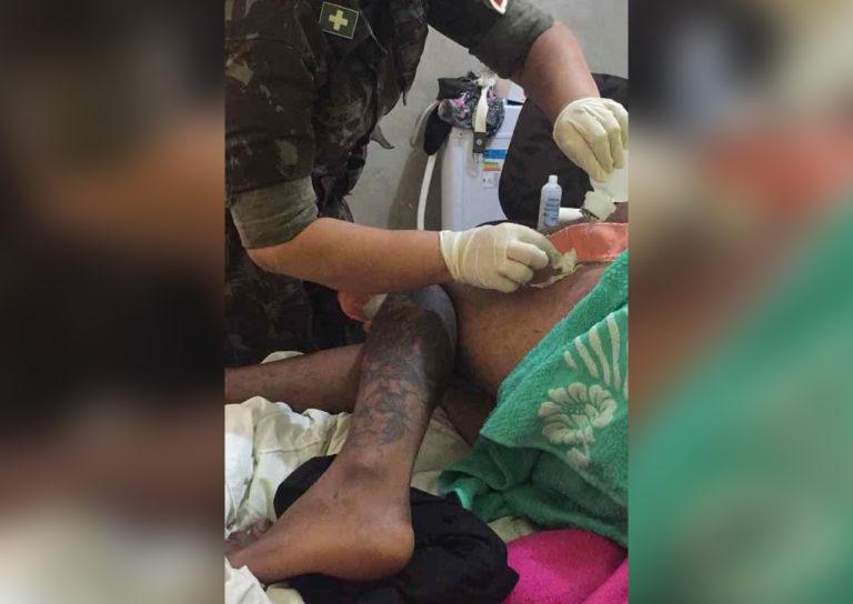 Vítima foi atingida por dois tiros nas pernas.