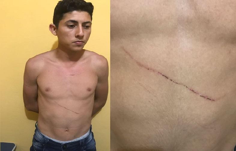 """Amante de 18 anos se entrega a policia e alega legitima defesa- """"ele tentou me matar com uma faca""""..."""