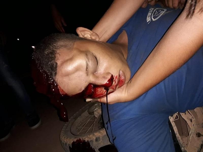 O o rapaz teve lesão exposta na cabeça com gravidade. (Foto:WhatsApp)
