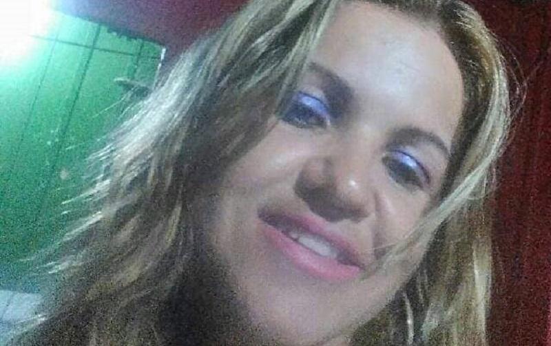 IMAGEM FORTE - Mulher queimada viva pelo marido não corre risco de morte , diz hospital