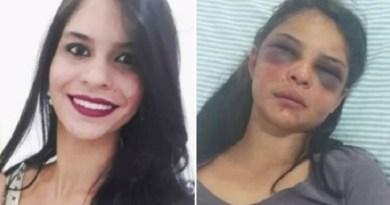 Homem alega 'legítima defesa' pra explicar agressão à companheira de 19 anos de idade