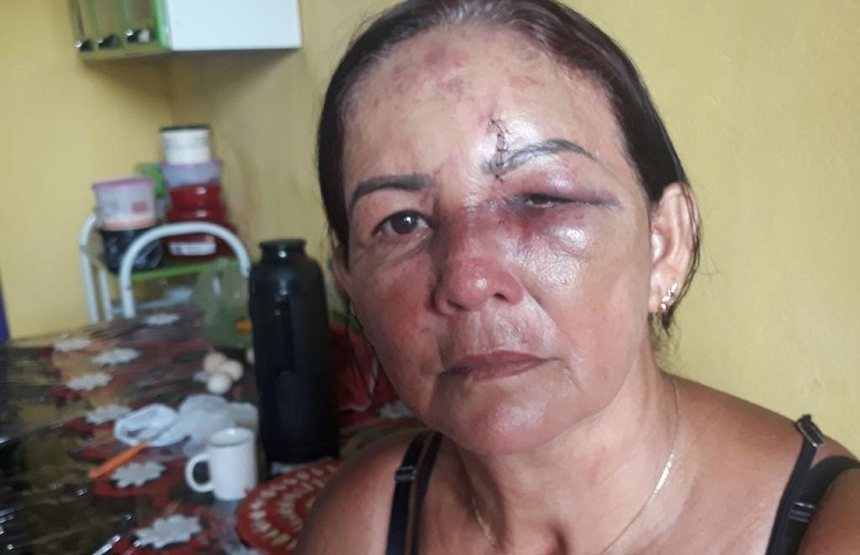 Ela conta que estava em casa quando o ex adentrou na residência. (Foto:Via WhatsApp Jornal Folha do progresso)