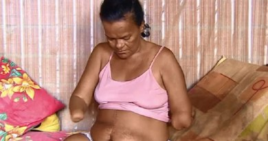 mulher sem perna