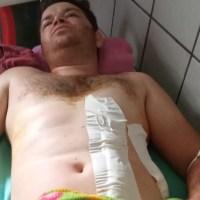 Motorista de caminhão é esfaqueado em Alvorada da Amazônia