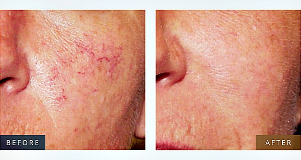 All of Us Have This Remedy for Broken Capillaries at Home, but We are not Aware of It!