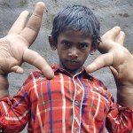 Kaleem the boy with large hands