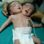 Conjoined India born babies die after 20 days