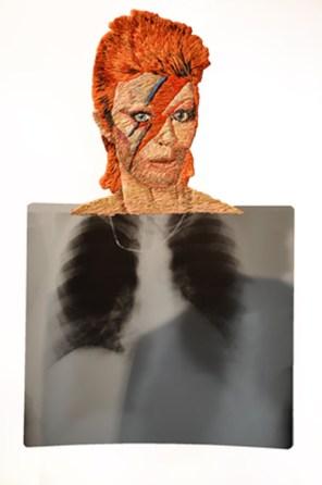 David Bowie © Mattew Cox