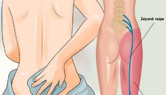 Ισχιαλγία: 8 πολύτιμες θεραπείες που θα σε ανακουφίσουν από τον πόνο με φυσικό τρόπο και θα μειώσουν την φλεγμονή
