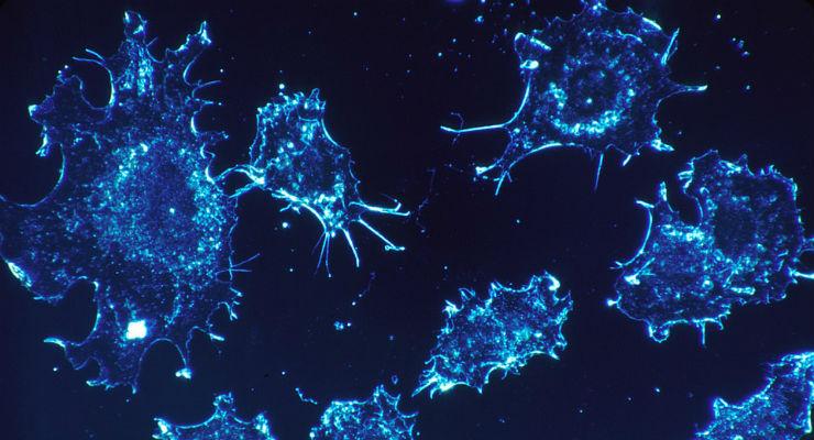 Individuato interruttore che disattiva le cellule killer cancro: studio made in Italy