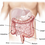 Major Ways Of Cleansing The Colon