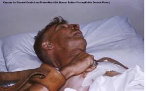 Hospitalized_human_rabies_victim