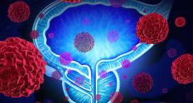 bigstock-Prostate-Cancer-95172368