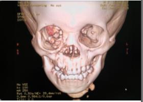 CT scan enhanced