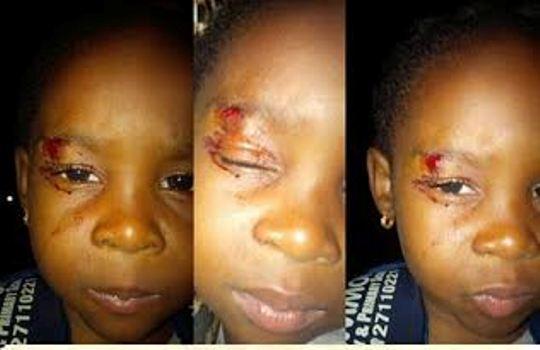 injured-child