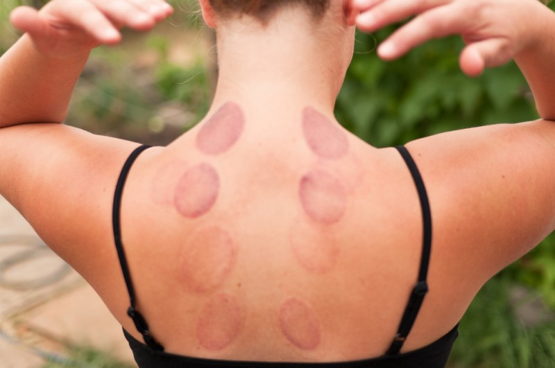 Wet Cupping or 'Hijama': The Ancient Art of Healing