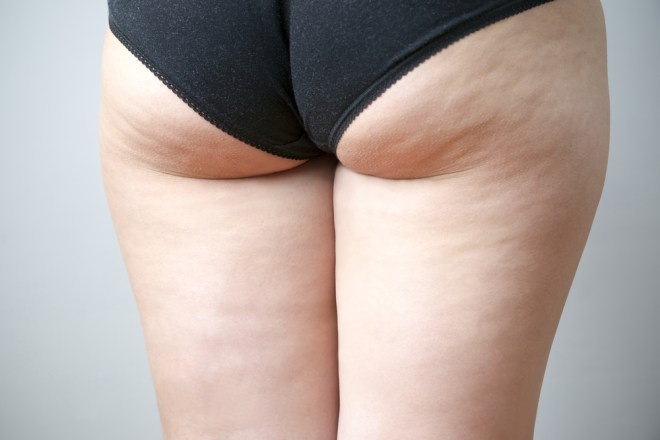 cellulite-bum-coffee-grounds
