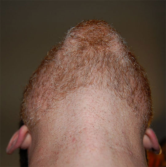 An example of shaved neck beard.