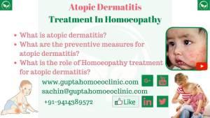 Atopic Dermatitis Treatment in Homoeoapthy